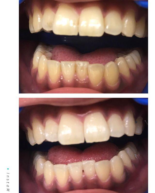 ホワイトニングこれは一度の照射でここまで白くなりました(^^)️ぜひお試し下さい(*☻-☻*)#ホワイトニング #dentalclinic#向ヶ丘遊園#ひまわり歯科