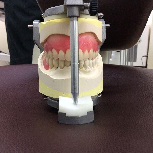こんにちは!向ヶ丘遊園ひまわり歯科です向ヶ丘遊園ひまわり歯科は義歯の作成も得意にしています!この義歯は上はクーゲルホックアタッチメントデンチャー、下はOPAアタッチメントデンチャーという特殊な義歯になります。入れ歯でお困りな方、快適な入れ歯を使いたいと思っている方、両親や祖父母にいい入れ歯を入れたいと思っている方。是非ひまわり歯科に一度相談に来てください(^^)お待ちしています!!#向ヶ丘遊園#登戸#川崎#成城学園#吉祥寺#調布#立川#横浜#入れ歯#義歯#ジルコニア#セラミック#ホワイトニング#インプラント#広島カープ